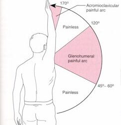Shoulder pain – Impingement Syndrome