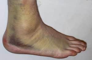 sever ankle sprain 1